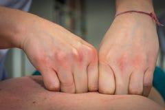 Massaggio posteriore con le articolazioni, primo piano alle mani immagine stock libera da diritti