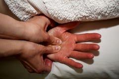 Massaggio sinistro della palma dai pollici fotografia stock libera da diritti