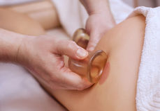 The masseur makes massage with jars of cellulite on the buttock and thighs of the patient. Treatment of excess weight stock image