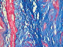 Histology of the Human Breast seen with 3 colors. This is a close up picture of human breast tissue taken through a microscope. This tissue has been stained with royalty free stock images