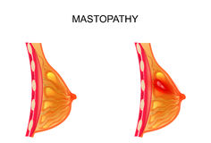 Mastopathy. healthy and diseased mammary gland vector illustration