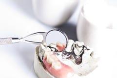 Matériel de stomatologie et contrôle dentaire Photo stock
