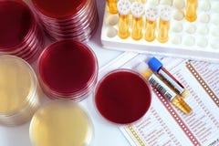 Matériel médical avec des tubes d'urine et des boîtes de Pétri pour l'analyse Photo libre de droits
