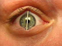 Match in eye. Tired? sleepy man with match in his eye stock illustration