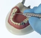Materiale da otturazione dentario pediatrico Fotografia Stock Libera da Diritti