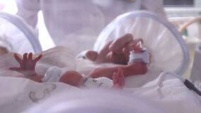 Maternity centre. .Severely ill newborn in incubator, intensive hospital therapy: CCU, ICU, ITU. The tiny baby child