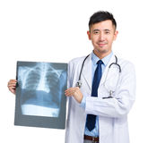 Mature doctor holding x-ray Stock Photography