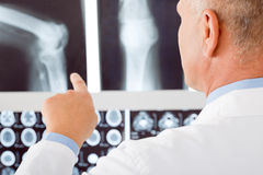 Mature doctor male point at set x-ray. Professional male senior doctor pointing at set of x-rays Stock Photo