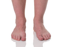 Mature man barefoot with dry skin Stock Photo