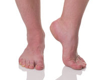 Mature man barefoot with dry skin Royalty Free Stock Photography