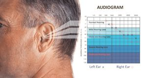Mature man with symptom of hearing loss. And audiogram on white background. Medical test royalty free stock photo