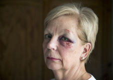 Mature woman with a sad facial expression with a bruised eye. Portrait image of a mature woman with a sad facial expression with a bruised eye Stock Image