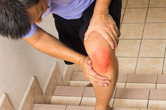 Matured man suffering acute knee joint pain climbing stairs