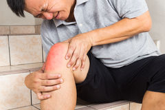 Matured man suffering painful knee joint seated on steps Stock Photos
