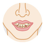 Mauvaise dentition et dents sales Images stock