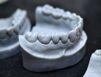 A maxila mais baixa de um homem, criada em uma impressora 3d de um material do photopolymer Fotografia de Stock