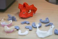 A maxila mais baixa de um homem, criada em uma impressora 3d de um material do photopolymer Impressora da estereolitografia 3D, t Fotos de Stock Royalty Free