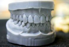 A maxila superior e mais baixa de um homem imprimiu em uma impressora 3d do photopolymer Fotografia de Stock
