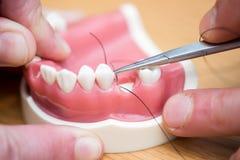 Maxillary tandläkareimplantat för silikon Fotografering för Bildbyråer