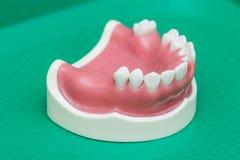 Maxillary tandläkareimplantat för silikon Royaltyfri Fotografi