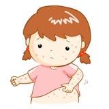 Mädchen, das itching Hautausschlag auf seinem Körper verkratzt Lizenzfreie Stockbilder
