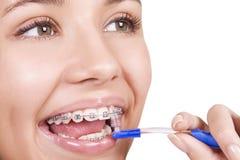 Mädchen mit den Klammern, die ihre Zähne putzen Stockfotos
