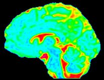 Mean Diffusivity Brain Map in Sagittal View Stock Photography