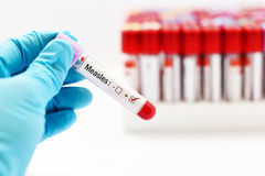 Measles positive. Blood sample positive with measles virus stock photo