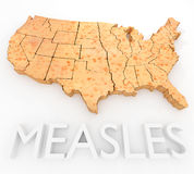 Measles Return To The US Royalty Free Stock Photos