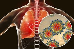 Measles viruses in human respiratory system. 3D illustration Royalty Free Stock Photos