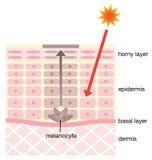 Mecanismo de la piel de manchas Imagenes de archivo