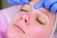 Mechanical cleaning of the face at the beautician. Cosmetologist squeeze the acne on the face of the patient medical. Needle royalty free stock images
