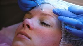 Mechanical cleaning of the face at the beautician. Cosmetologist squeeze the acne on the forehead of the patient with. Medical needle stock footage