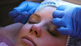 Mechanical cleaning of the face at the beautician. Cosmetologist squeeze the acne on the forehead of the patient with. Medical needle stock video footage