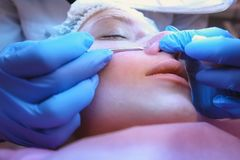 Mechanical cleaning of the face at the beautician. Cosmetologist squeeze the acne on the nose of the patient with. Medical needle stock photos