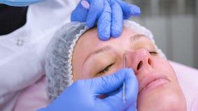Mechanische Reinigung des Gesichtes am Kosmetiker Cosmetologist drücken die Akne auf dem Gesicht vom geduldigen medizinischen zus stock video