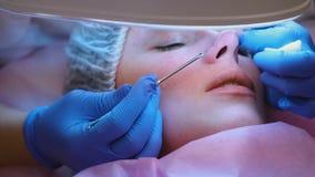 Mechanische Reinigung des Gesichtes am Kosmetiker Cosmetologist drücken die Akne auf der Nase des Patienten mit zusammen stock video footage