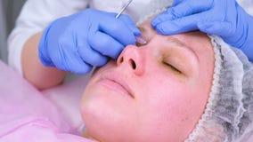 Mechanische Reinigung des Gesichtes am Kosmetiker Cosmetologist durchbohrt die Akne auf dem Gesicht vom geduldigen medizinischen stock video