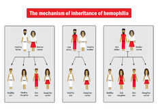 The mechanism of inheritance of hemophilia. Infographics. Vector illustration on  background Royalty Free Stock Image