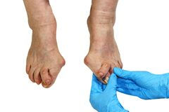 Medecin, valgus bunion, leg with deformation valgus hallux Bunion. Consequence of failure of treatment, isolated on white background with clipping path, place Stock Image