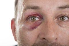 Medelålders Caucasian manlig emotionell stående med ett verkligt blåmärke fotografering för bildbyråer