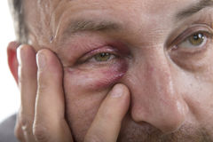 Medelålders Caucasian manlig emotionell stående med ett verkligt blåmärke royaltyfri foto