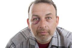 Medelålders Caucasian manlig emotionell stående med ett verkligt blåmärke royaltyfria foton