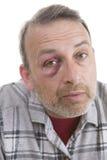 Medelålders Caucasian manlig emotionell stående med ett verkligt blåmärke royaltyfri bild
