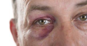 Medelålders Caucasian manlig emotionell stående med ett verkligt blåmärke arkivbild