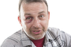 Medelålders Caucasian manlig emotionell stående med ett verkligt blåmärke royaltyfria bilder