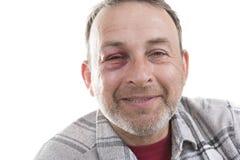 Medelålders Caucasian manlig emotionell stående med ett verkligt blåmärke arkivfoton
