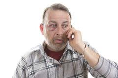 Medelålders Caucasian manlig emotionell stående med ett verkligt blåmärke royaltyfri fotografi