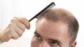 Medelålders man som angås av slut för alopeci för flintskallighet för hårförlust upp vit bakgrund Royaltyfri Foto