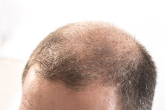 Medelålders man som angås av slut för alopeci för flintskallighet för hårförlust upp vit bakgrund Royaltyfri Fotografi